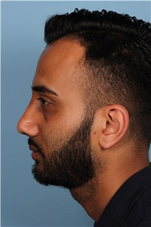 Rhinoplasty After Photo by Homayoun Sasson, MD, FACS; Great Neck, NY - Case 31731