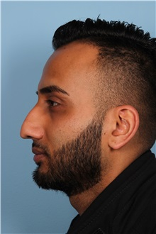 Rhinoplasty Before Photo by Homayoun Sasson, MD, FACS; Great Neck, NY - Case 31731