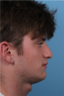 Rhinoplasty Before Photo by Homayoun Sasson, MD, FACS; Great Neck, NY - Case 31732