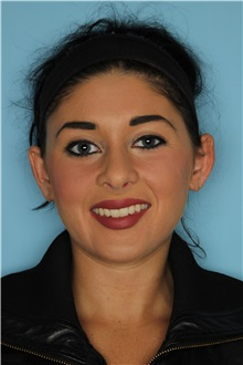 Rhinoplasty After Photo by Homayoun Sasson, MD, FACS; Great Neck, NY - Case 31733
