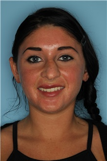 Rhinoplasty Before Photo by Homayoun Sasson, MD, FACS; Great Neck, NY - Case 31733