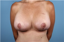 Breast Augmentation After Photo by Homayoun Sasson, MD, FACS; Great Neck, NY - Case 31734