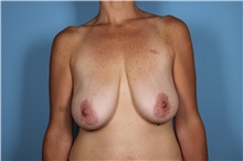Breast Augmentation Before Photo by Homayoun Sasson, MD, FACS; Great Neck, NY - Case 31734