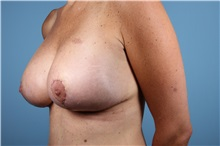 Breast Augmentation After Photo by Homayoun Sasson, MD, FACS; Great Neck, NY - Case 31735