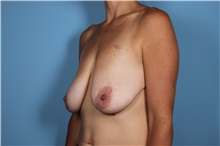 Breast Augmentation Before Photo by Homayoun Sasson, MD, FACS; Great Neck, NY - Case 31735