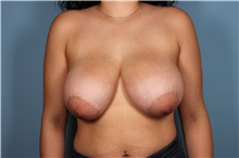 Breast Lift Before Photo by Homayoun Sasson, MD, FACS; Great Neck, NY - Case 31736