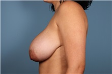 Breast Lift Before Photo by Homayoun Sasson, MD, FACS; Great Neck, NY - Case 31737