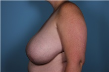 Breast Reduction Before Photo by Homayoun Sasson, MD, FACS; Great Neck, NY - Case 31738