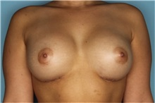 Breast Augmentation After Photo by Homayoun Sasson, MD, FACS; Great Neck, NY - Case 31739