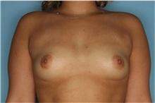 Breast Augmentation Before Photo by Homayoun Sasson, MD, FACS; Great Neck, NY - Case 31739