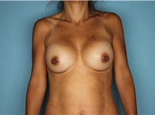Breast Augmentation After Photo by Homayoun Sasson, MD, FACS; Great Neck, NY - Case 31740