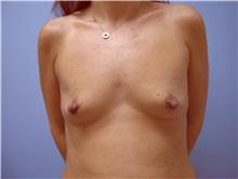 Breast Augmentation Before Photo by Homayoun Sasson, MD, FACS; Great Neck, NY - Case 31740