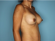 Breast Augmentation After Photo by Homayoun Sasson, MD, FACS; Great Neck, NY - Case 31741
