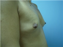 Breast Augmentation Before Photo by Homayoun Sasson, MD, FACS; Great Neck, NY - Case 31741