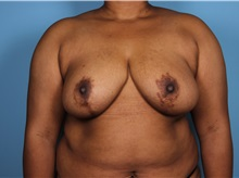 Breast Reduction After Photo by Homayoun Sasson, MD, FACS; Great Neck, NY - Case 31742