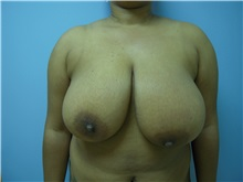 Breast Reduction Before Photo by Homayoun Sasson, MD, FACS; Great Neck, NY - Case 31742