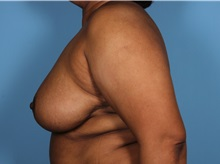 Breast Reduction After Photo by Homayoun Sasson, MD, FACS; Great Neck, NY - Case 31743