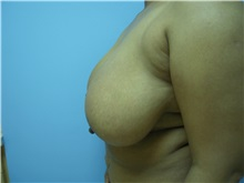 Breast Reduction Before Photo by Homayoun Sasson, MD, FACS; Great Neck, NY - Case 31743
