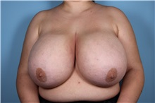 Breast Reduction Before Photo by Homayoun Sasson, MD, FACS; Great Neck, NY - Case 31744