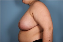 Breast Reduction After Photo by Homayoun Sasson, MD, FACS; Great Neck, NY - Case 31745