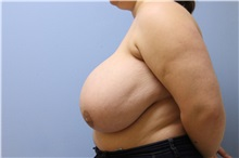 Breast Reduction Before Photo by Homayoun Sasson, MD, FACS; Great Neck, NY - Case 31745