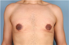 Male Breast Reduction After Photo by Homayoun Sasson, MD, FACS; Great Neck, NY - Case 31746