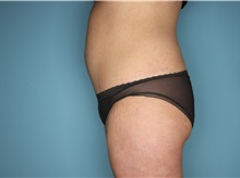 Tummy Tuck After Photo by Homayoun Sasson, MD, FACS; Great Neck, NY - Case 31748