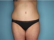 Tummy Tuck After Photo by Homayoun Sasson, MD, FACS; Great Neck, NY - Case 31749