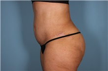 Tummy Tuck After Photo by Homayoun Sasson, MD, FACS; Great Neck, NY - Case 31750