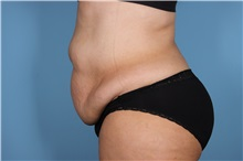 Tummy Tuck Before Photo by Homayoun Sasson, MD, FACS; Great Neck, NY - Case 31750