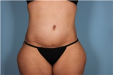 Tummy Tuck After Photo by Homayoun Sasson, MD, FACS; Great Neck, NY - Case 31751