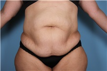 Tummy Tuck Before Photo by Homayoun Sasson, MD, FACS; Great Neck, NY - Case 31751