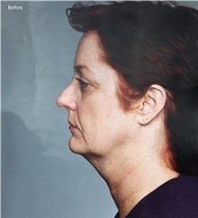Facelift Before Photo by Homayoun Sasson, MD, FACS; Great Neck, NY - Case 31753