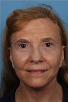 Facelift After Photo by Homayoun Sasson, MD, FACS; Great Neck, NY - Case 31754