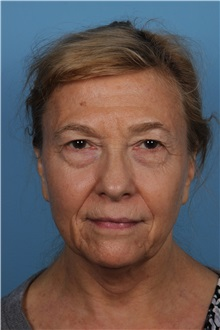 Facelift Before Photo by Homayoun Sasson, MD, FACS; Great Neck, NY - Case 31754