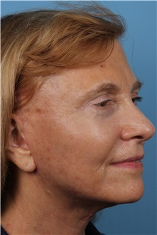 Facelift After Photo by Homayoun Sasson, MD, FACS; Great Neck, NY - Case 31755