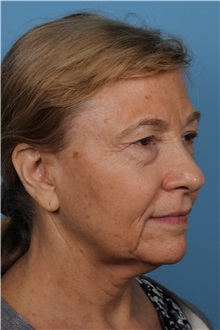 Facelift Before Photo by Homayoun Sasson, MD, FACS; Great Neck, NY - Case 31755