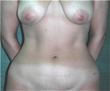 Liposuction Before Photo by Steven Wallach, MD; New York, NY - Case 33629