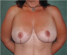 Breast Lift After Photo by Steven Wallach, MD; New York, NY - Case 33633