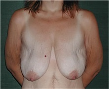 Breast Lift Before Photo by Steven Wallach, MD; New York, NY - Case 33633