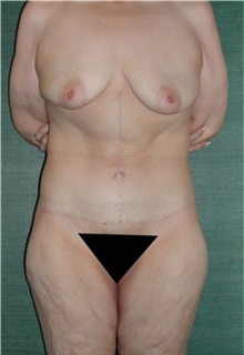 Tummy Tuck After Photo by Steven Wallach, MD; New York, NY - Case 33636