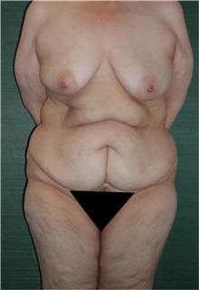 Tummy Tuck Before Photo by Steven Wallach, MD; New York, NY - Case 33636