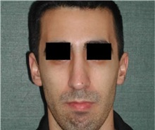 Rhinoplasty After Photo by Steven Wallach, MD; New York, NY - Case 33638