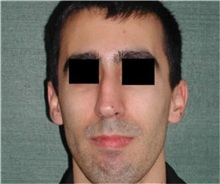 Rhinoplasty Before Photo by Steven Wallach, MD; New York, NY - Case 33638