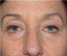 Eyelid Surgery After Photo by Steven Wallach, MD; New York, NY - Case 33639