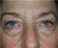Eyelid Surgery Before Photo by Steven Wallach, MD; New York, NY - Case 33639