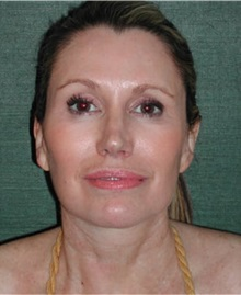 Facelift After Photo by Steven Wallach, MD; New York, NY - Case 33640