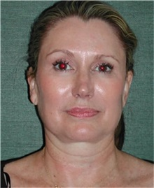 Facelift Before Photo by Steven Wallach, MD; New York, NY - Case 33640