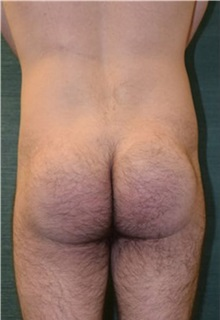 Buttock Implants After Photo by Steven Wallach, MD; New York, NY - Case 33643