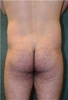 Buttock Implants Before Photo by Steven Wallach, MD; New York, NY - Case 33643